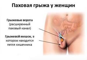 Грыжа или нет? - советы врачей на каждый день