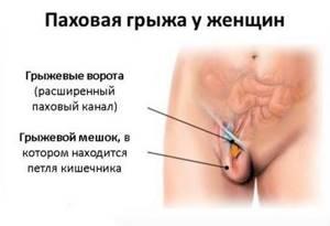 Шишка в области паха - советы врачей на каждый день