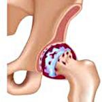 Коксортроз тазобедренного сустава - советы врачей на каждый день