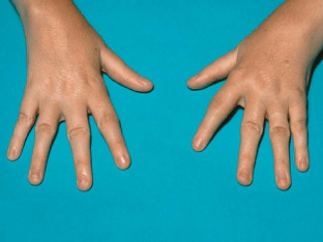 Аллергический артрит у ребёнка 5 лет - советы врачей на каждый день