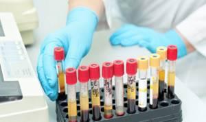 Повышены лимфоциты, понижены нейтрофилы - советы врачей на каждый день