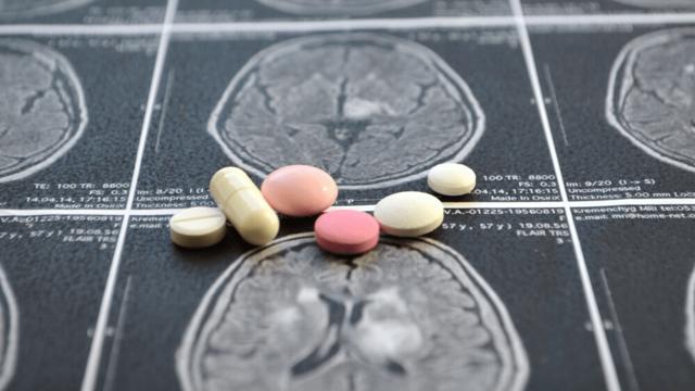 Последствия от приема таблеток от мигрени - советы врачей на каждый день