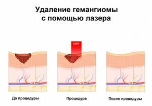 На голове проявилась гемангиома!! - советы врачей на каждый день