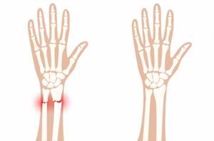 Боль в руке - советы врачей на каждый день