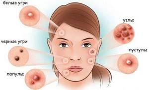 Высыпание на лице - советы врачей на каждый день