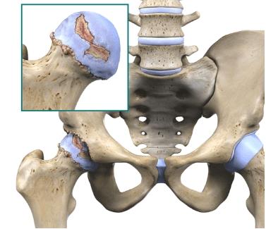 Коксартроз тазобедренного сустава - советы врачей на каждый день