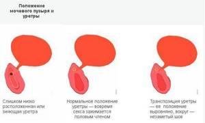 Боль и резь в пол члене после секса при мочеиспускании - советы врачей на каждый день