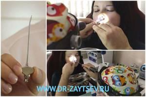 Щелканье в ушах после гацморита - советы врачей на каждый день