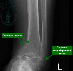 Перелом большой берцовой кости - советы врачей на каждый день