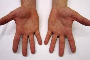 Прыщи на руках у 1,5 ребёнка - советы врачей на каждый день