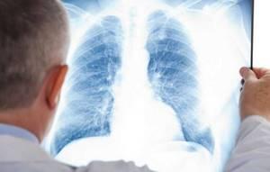 Корректно ли выполнен рентген легких? - советы врачей на каждый день