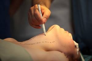 Последствия от удаления щитовитки с правой стороныж - советы врачей на каждый день