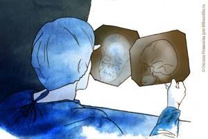 Архноидальная ликворная киста - советы врачей на каждый день