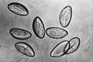 Эозинофилы в крови 15 % - советы врачей на каждый день