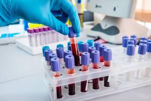 Плохой биохимический анализ крови - советы врачей на каждый день