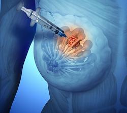 Кисты в груди - советы врачей на каждый день