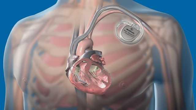 Ставить ли кардиостимулятор в 20 лет - советы врачей на каждый день