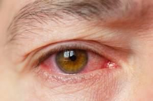 Краснота под глазом - советы врачей на каждый день