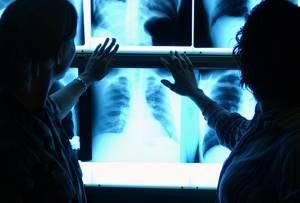 Помогите разобраться в результатах флюорографии - советы врачей на каждый день