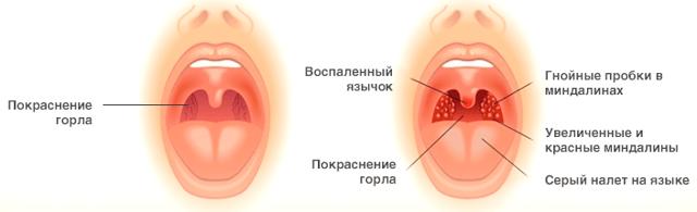 Как вылечить горло? - советы врачей на каждый день