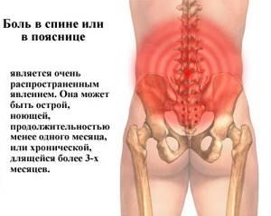 У меня болит поясница. Иначинает отнимается нога когда поясница начинает болеть - советы врачей на каждый день